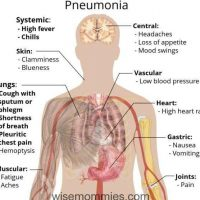 pneumonia 2